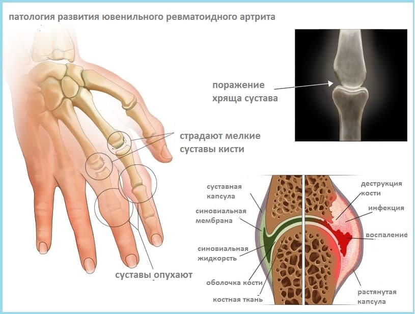 Лечение артритов пиявками