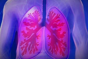 Гирудотерапия при пневмонии