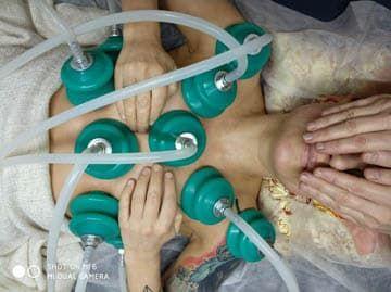 Вакуумная аппаратная терапия