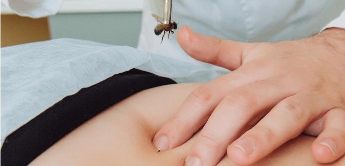 Как называется лечение пчелами
